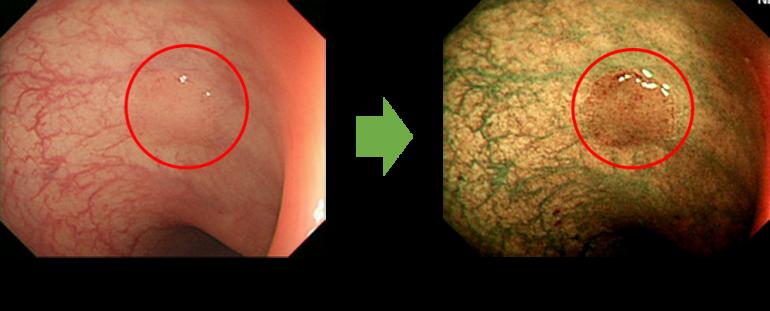 狭帯域光観察(NBI)で微細な病変を発見できます