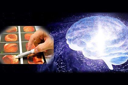 『内視鏡AI(人工知能)』で病気を早期発見